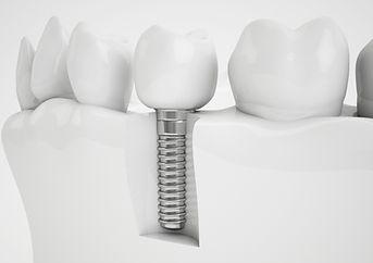 Implantología dental Indisson