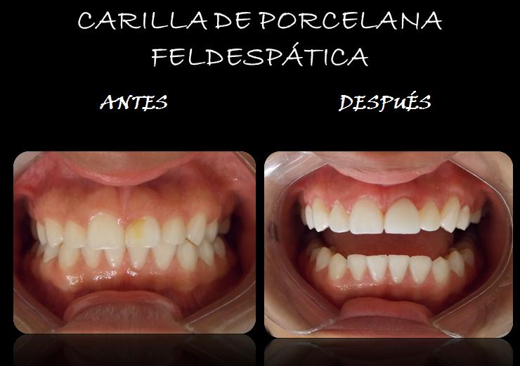 CARILLA_PORCELANA_FELDESPATICA