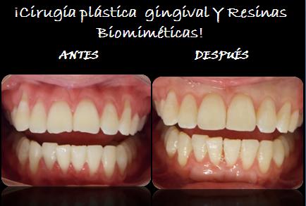 CIRUGIA_PLASTICA_GINGIVAL_Y_RESINAS_BIOMIMETICAS
