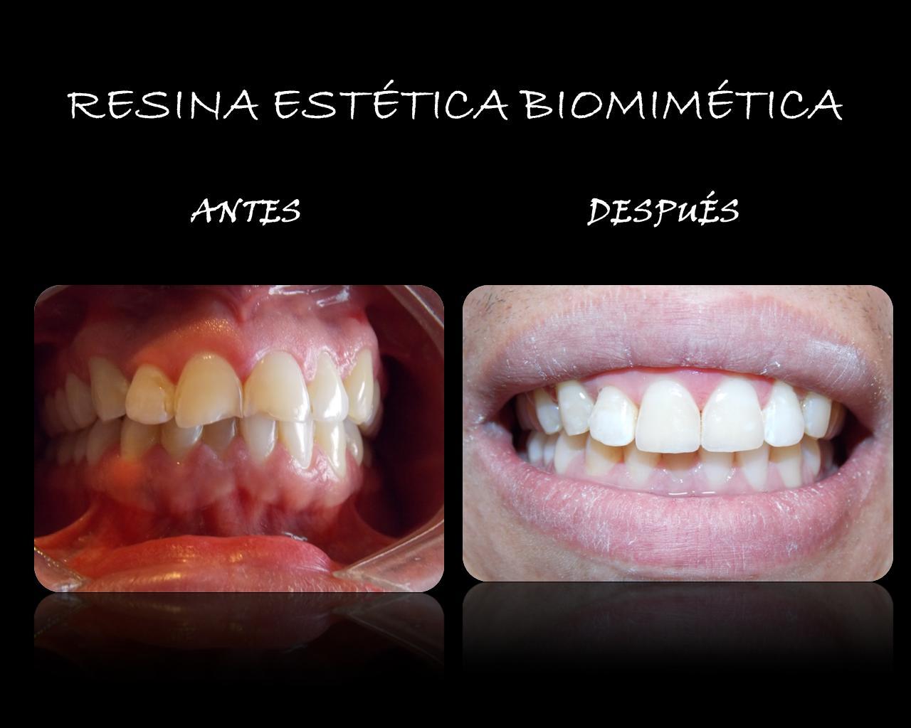 Resina+estética+biomimética.jpg