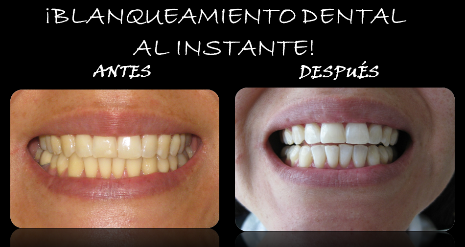 BLANQUEAMIENTO_DENTAL.png