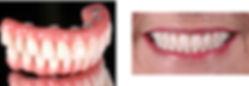 Dentadura sobre implante dental