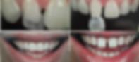 Mitos e verdades sobre lentes de contato dentais