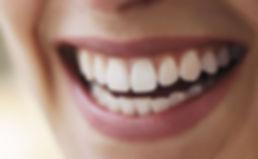 Garanta um sorriso mais branco