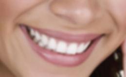 É possível clarear os dentes em casa?