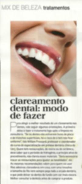 Clareamento dental, como fazer?