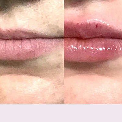 Plumped up lips with Juvéderm