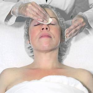 Stimulator Peel Treatment