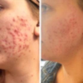 acne aerolase.jpg