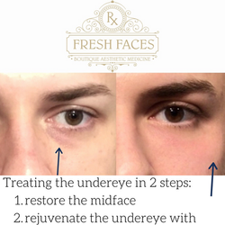 Midface and undereye filler