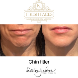 injectables chin