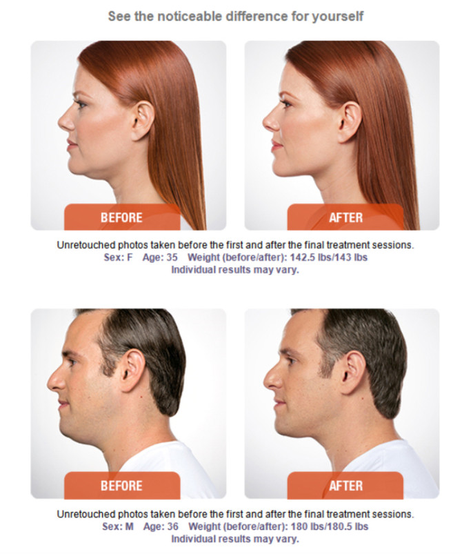 Let Fresh Faces RX Melt your double chin using Kybella!