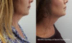 Secret-Faces_MiniFX_RS.jpg