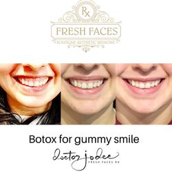 Botox gummy smile