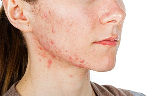 Fresh Faces Rx Real Acne Solutions