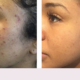 Microneedling and ZO Acne Protocol