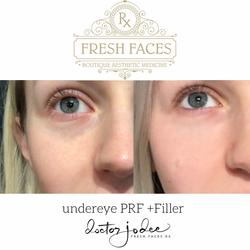 PRF and Filler undereye