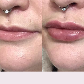 Cupid's Bow - Lip Injections