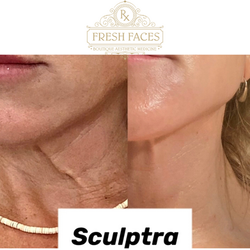 Sculptra neck