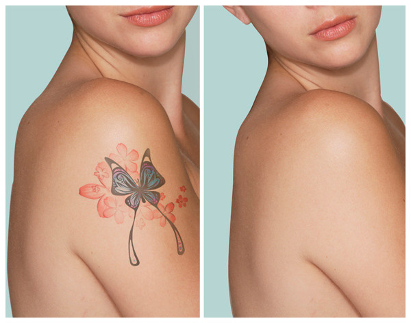 Fresh Faces RX Laser Tattoo Removal