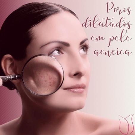 Poros dilatados e acne, como melhorar a aparência da pele?