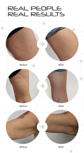 Fat Iron Kickstarter Stubborn fat stretch marks body toning wrinkles saggy skin fat burner Fat solution  real people real results