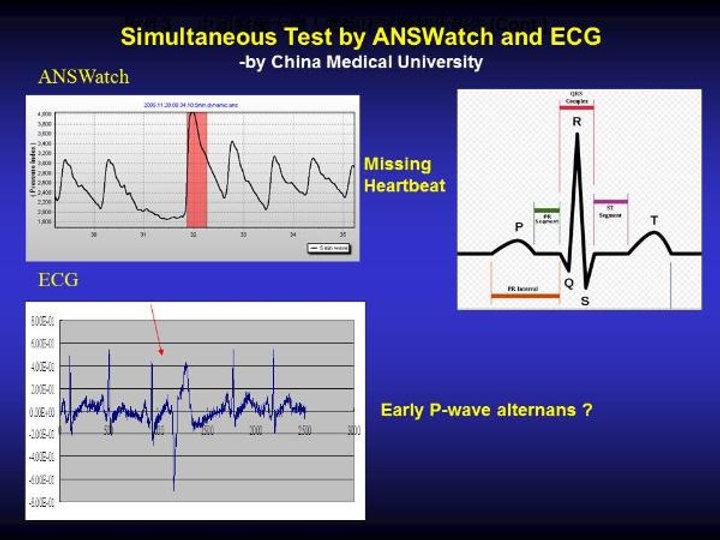 Irregular-heartbeat-8-600x450.jpg