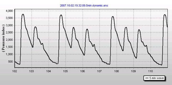 Irregular-heartbeat-6-600x298.jpg