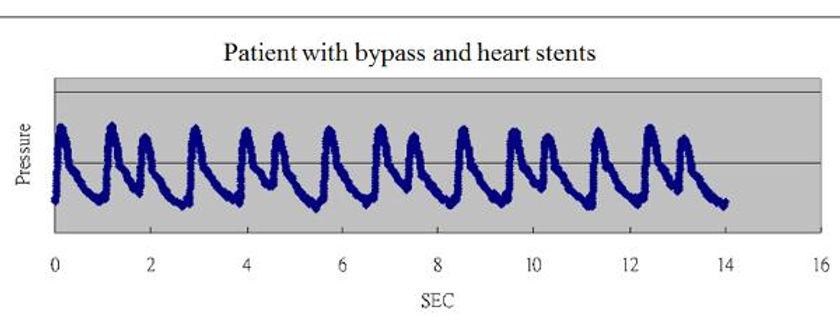Irregular-heartbeat-5-600x231.jpg