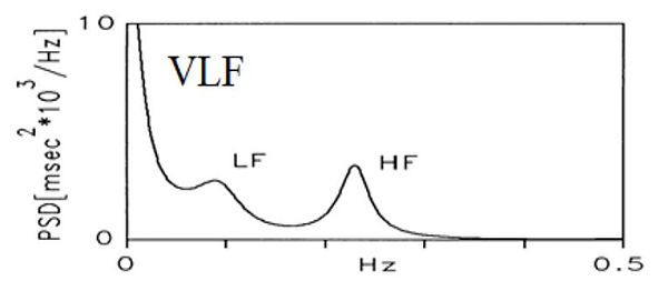 HRV-FFT-3-peak-763x333.jpg