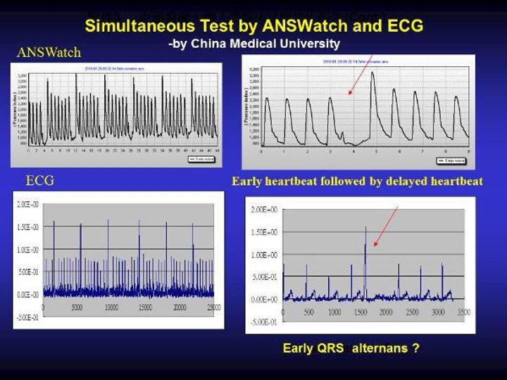 Irregular-heartbeat-9-600x450.jpg