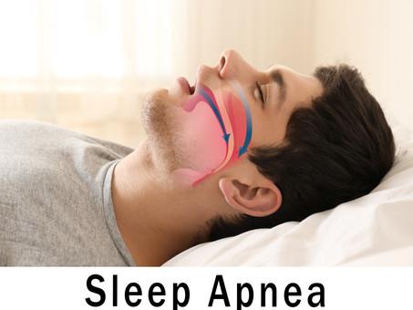 GUIDE TO SLEEP APNEA