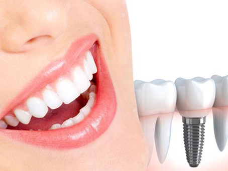 عمليات زرع الاسنان فى مصر