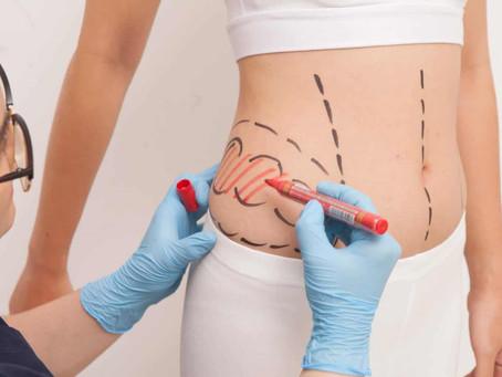 هل عمليات شفط الدهون خطيرة
