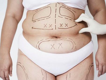 عمليات شفط الدهون واسعارها