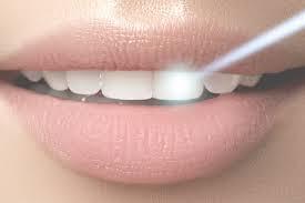 عملية ليزر الاسنان