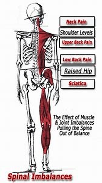 spinal-imbalances.v3.png