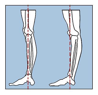9-Hyper-extended-Knee-1.jpg