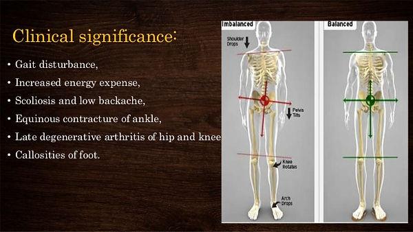 limb-length-discrepancy-9-638.jpg