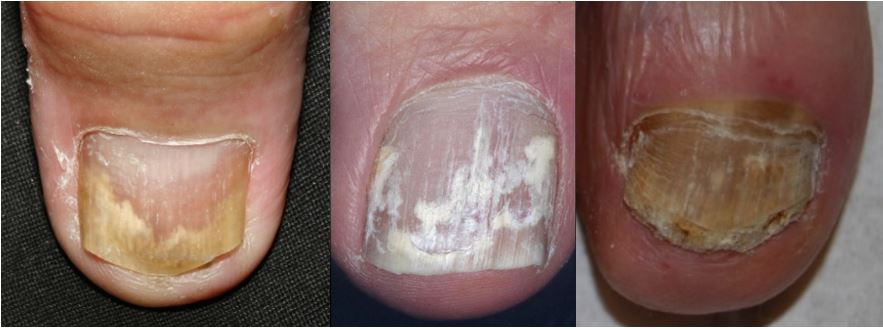 Types of fungal nails