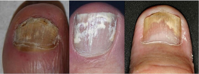 fungal%20nail%20appearence_edited.jpg