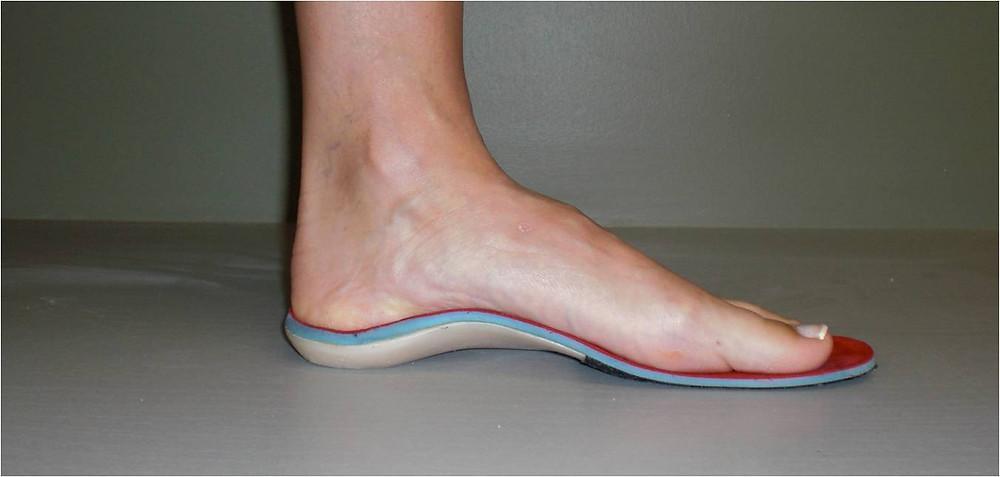 Custom foot orthoses