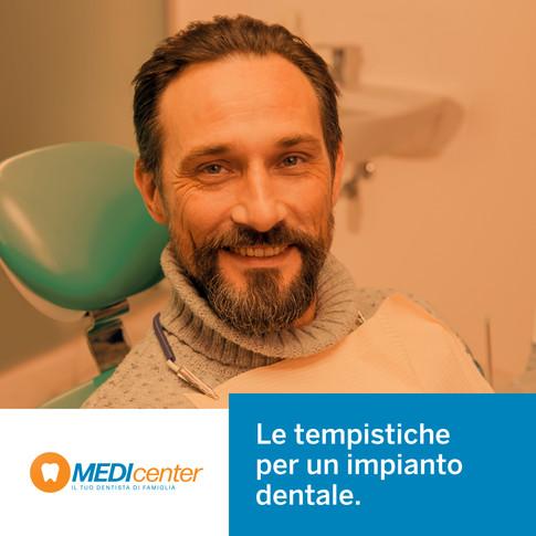 Quali sono le tempistiche per un impianto dentale?