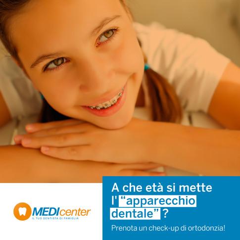 Apparecchio dentale e bambini: quando è necessario metterlo?