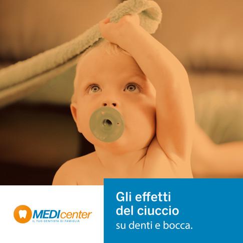 Bambini e ciuccio: gli effetti sullo sviluppo della bocca