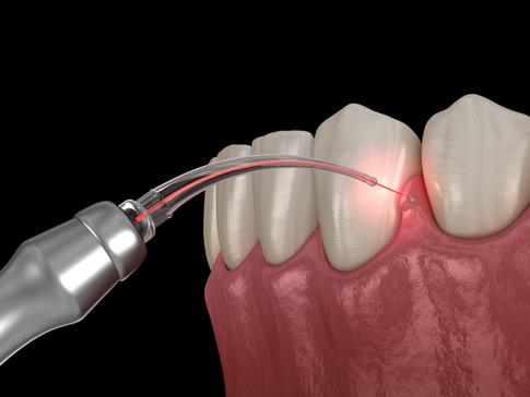Uso del laser in odontoiatria