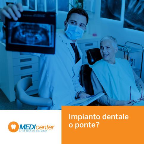Impianto dentale e ponte: due soluzioni per tornare a sorridere