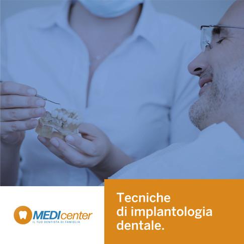 Le tecniche di posizionamento degli impianti dentali