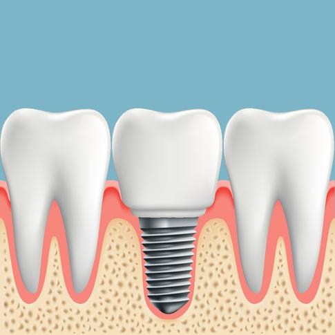 Quali sono gli impianti dentali migliori ?