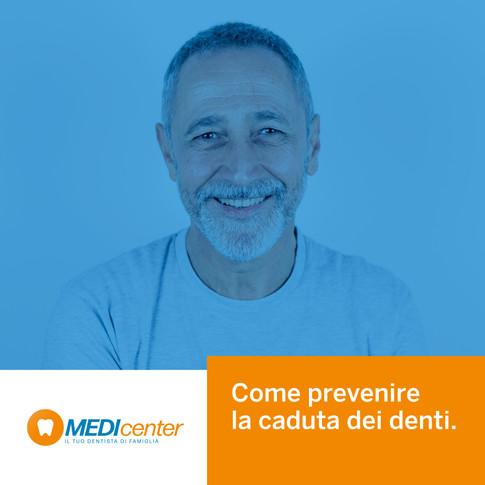 Come prevenire la caduta dei denti